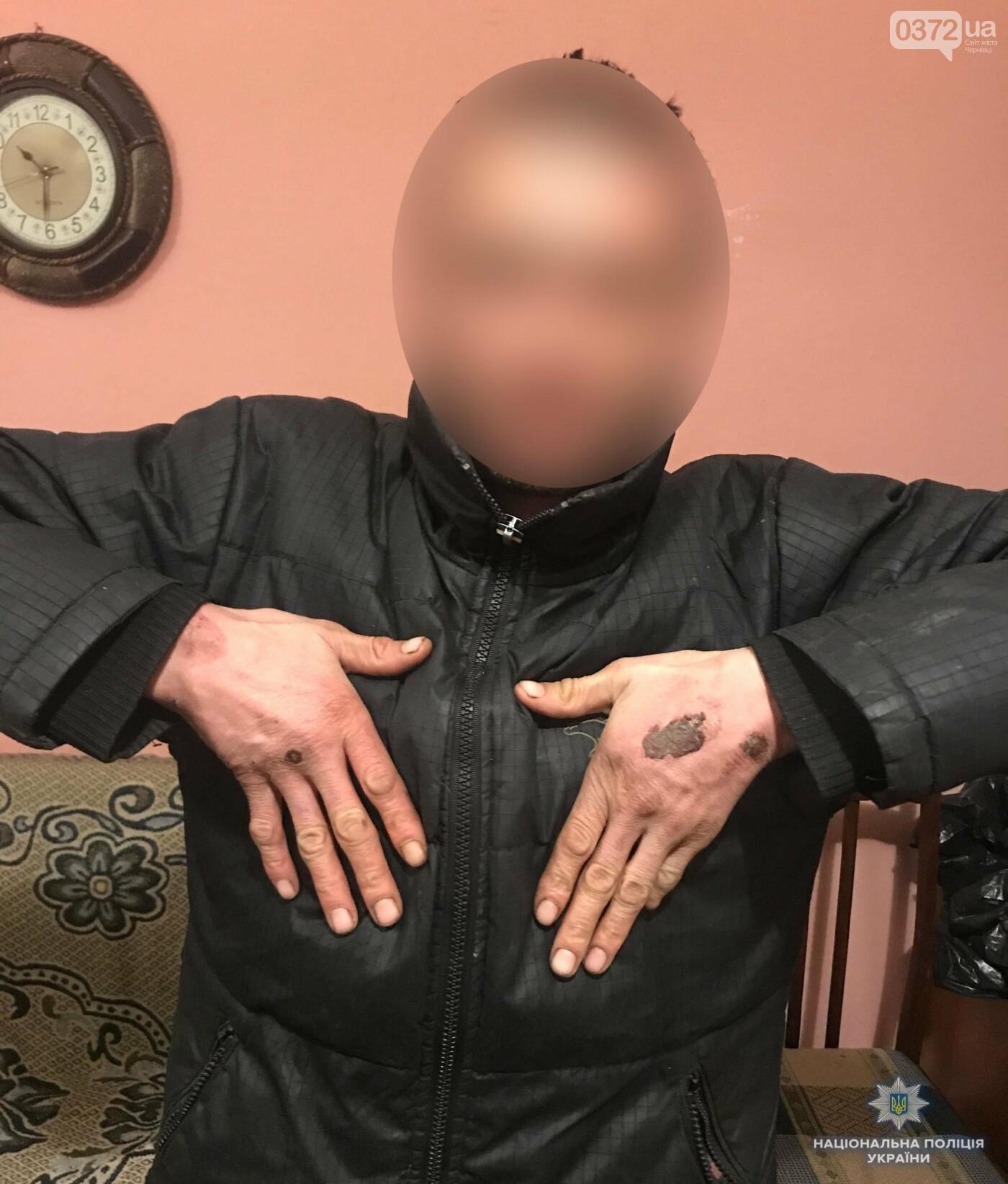 На Буковині чоловік утримував та жорстоко катував свого односельчанина (фото 18+), фото-2