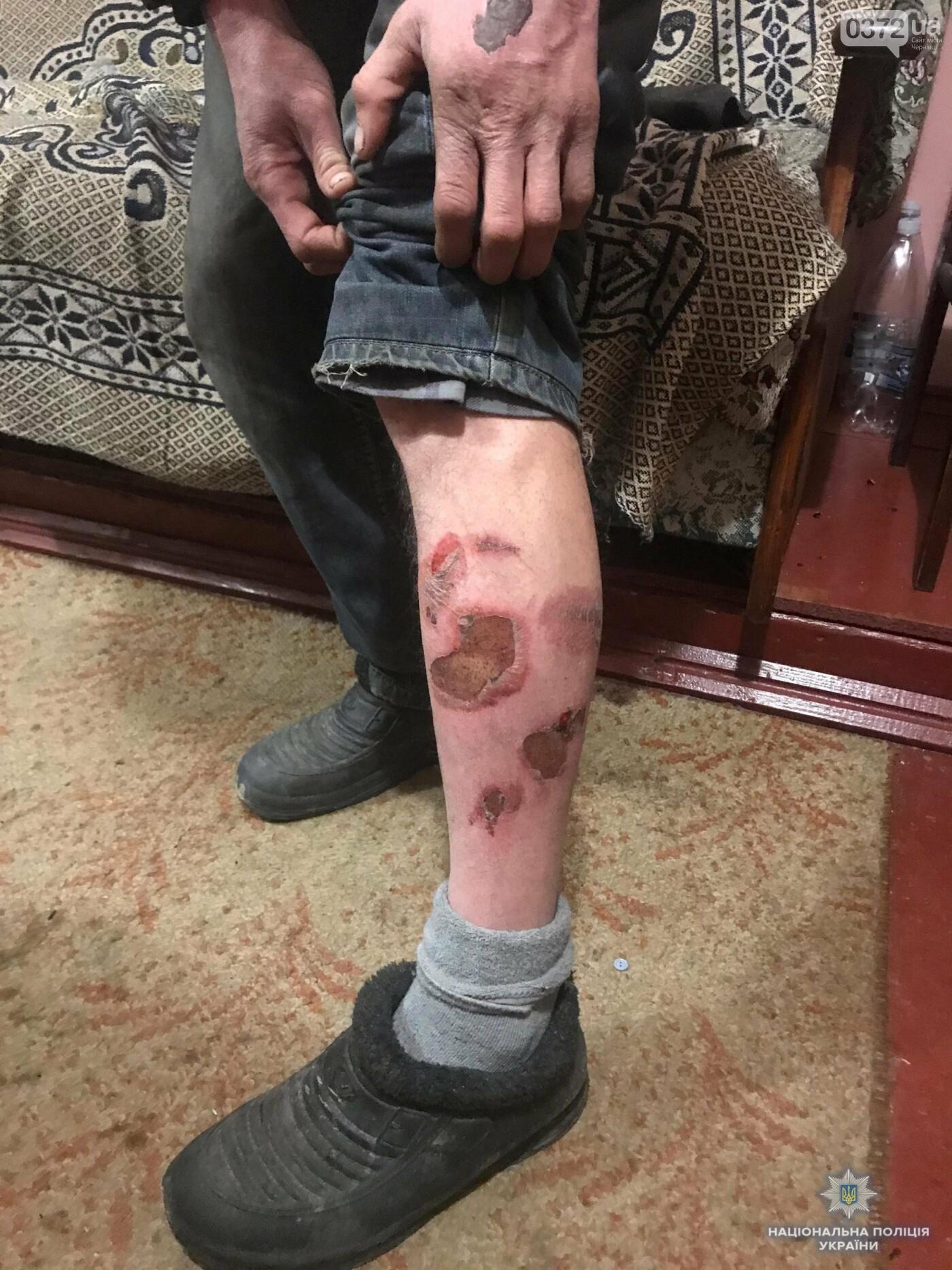 На Буковині чоловік утримував та жорстоко катував свого односельчанина (фото 18+), фото-1