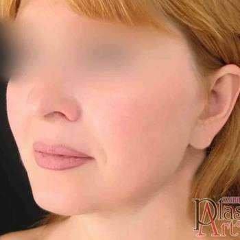 """Хірургія обличчя в клініці """"PlastART"""", фото-1"""