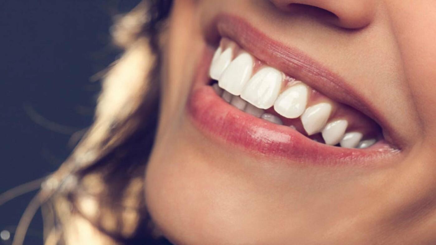 Як обрати стоматолога у Чернівцях