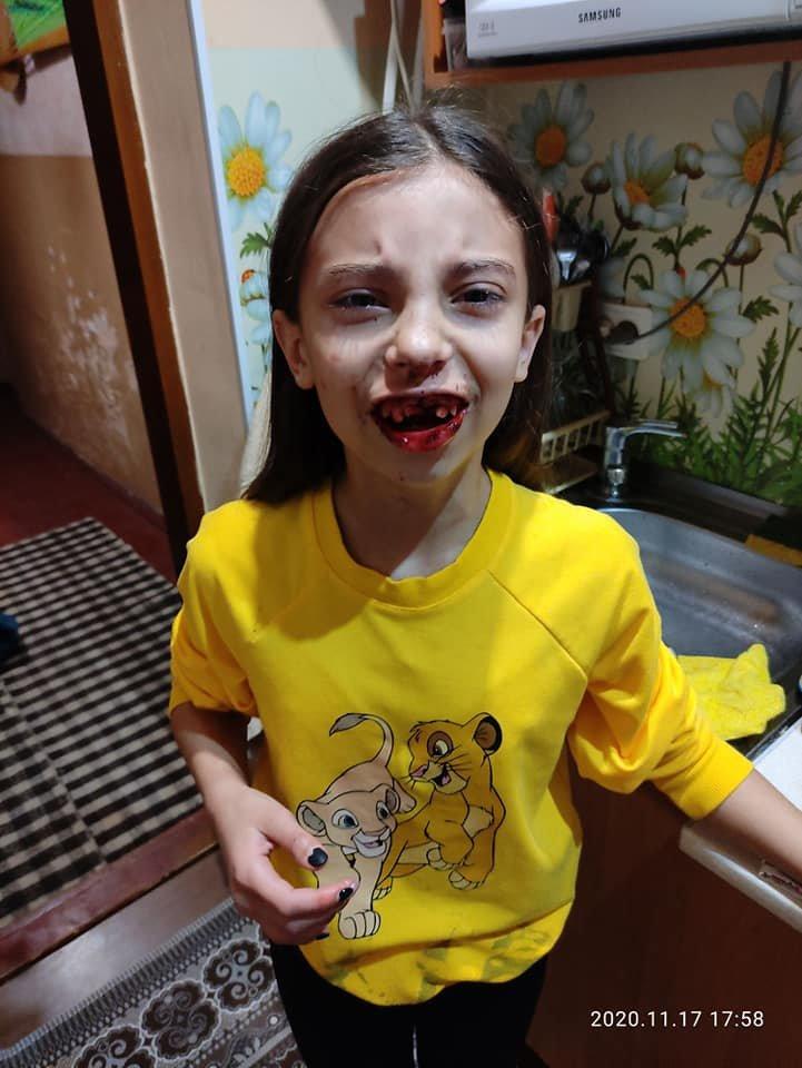 травмована внаслідок ДТП дівчинка
