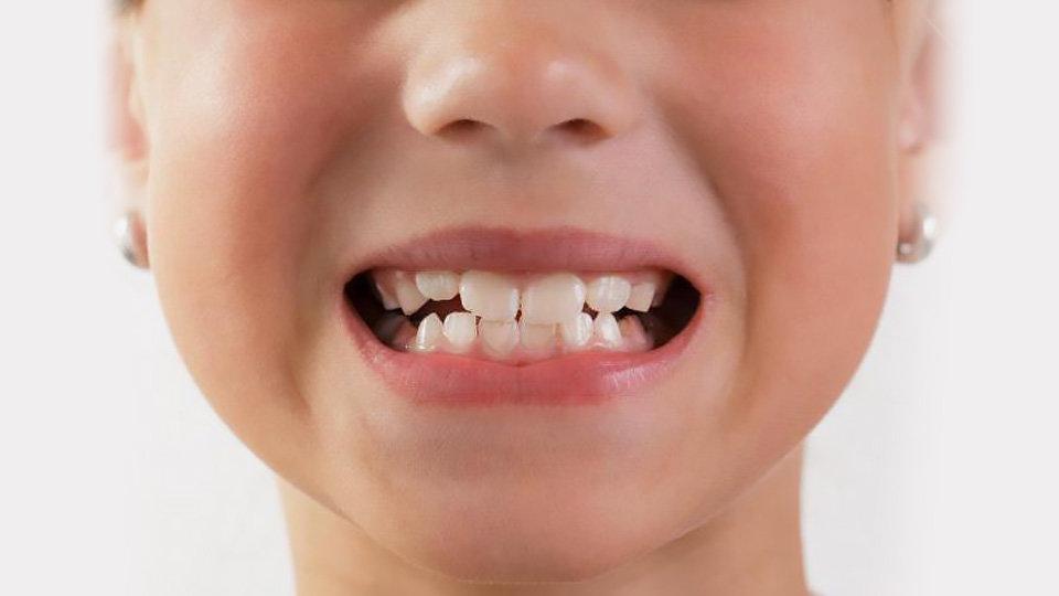 Ортодонтія у Чернівцях